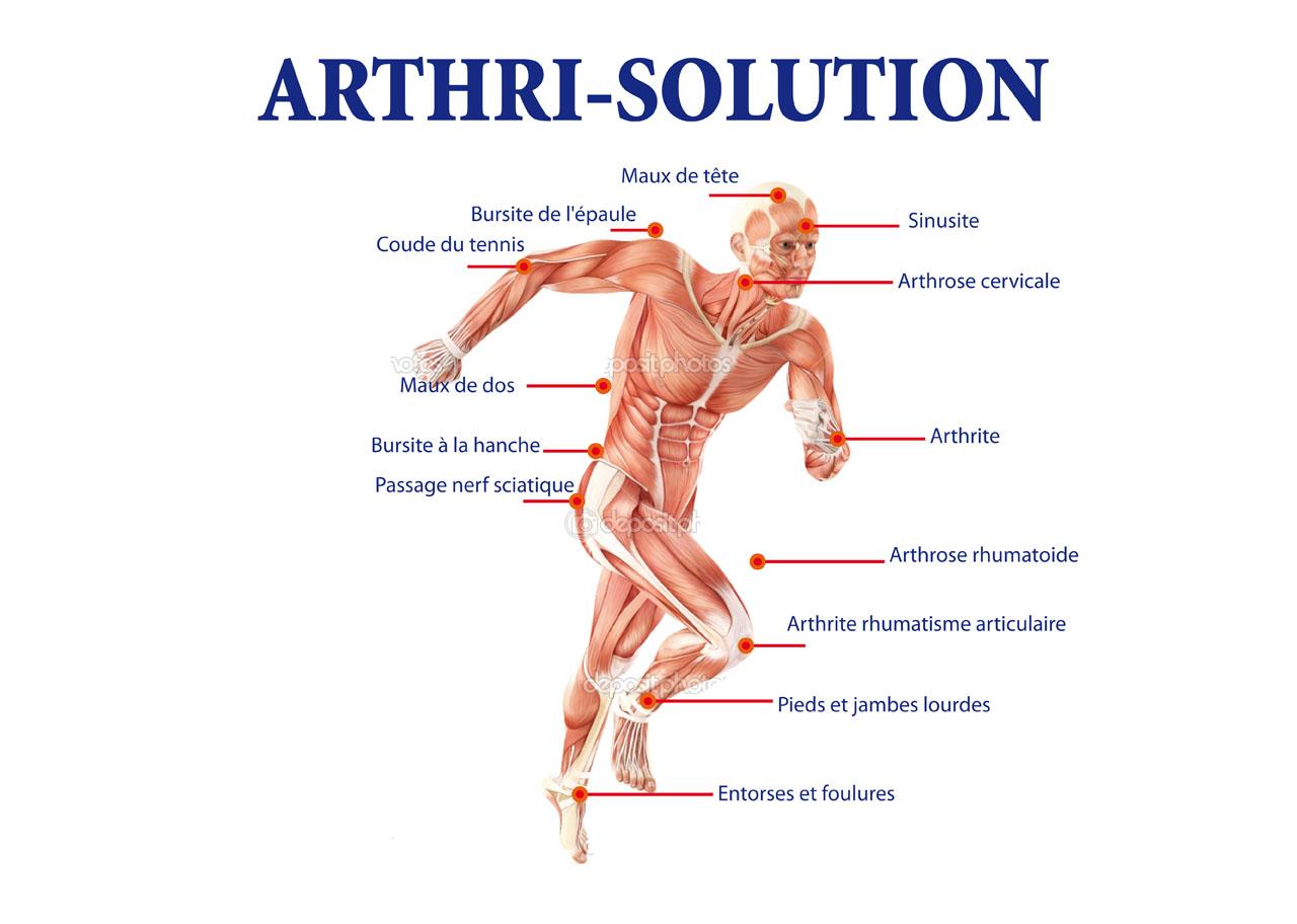 Chondrogen par Arthri-Solution